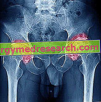 osteopathia fogyni