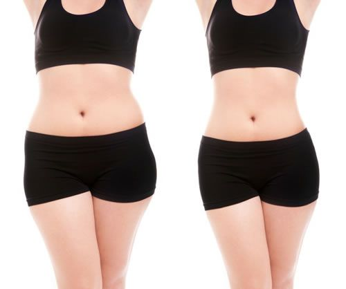 Problémás testtájak edzése, has-láb-fenék triumvirátus és a zsírégetés