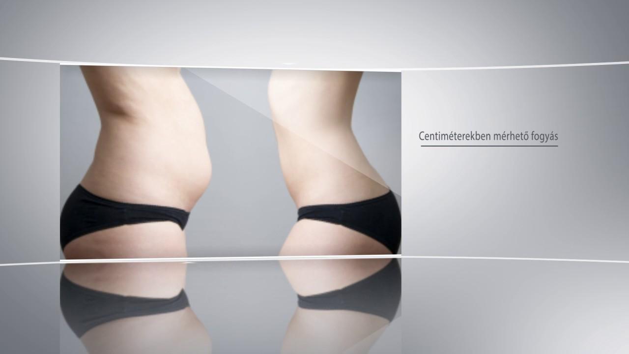 Fogyni cukorbetegen - A jó diéta inkább tanulás, mint akaraterő - Hogyan lehet lefogyni, ha kövér