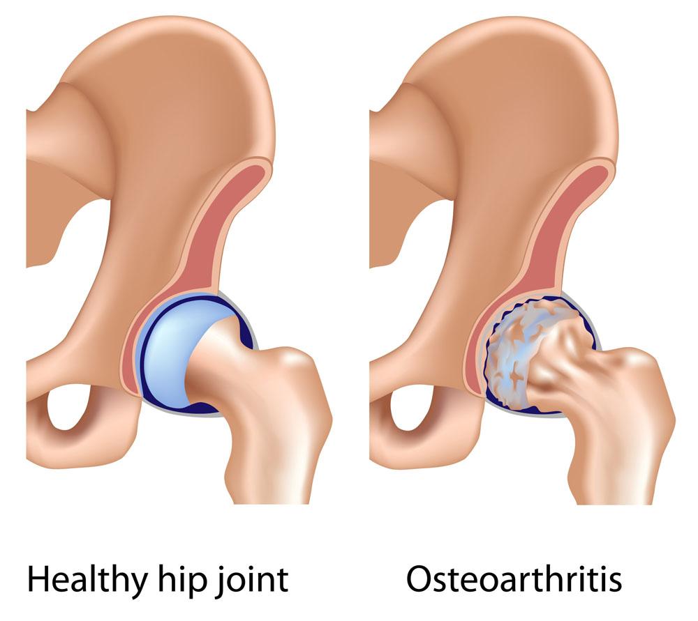 a fogyás segít a csípőízületi gyulladásban kopogás a fogyás carol megjelenésért
