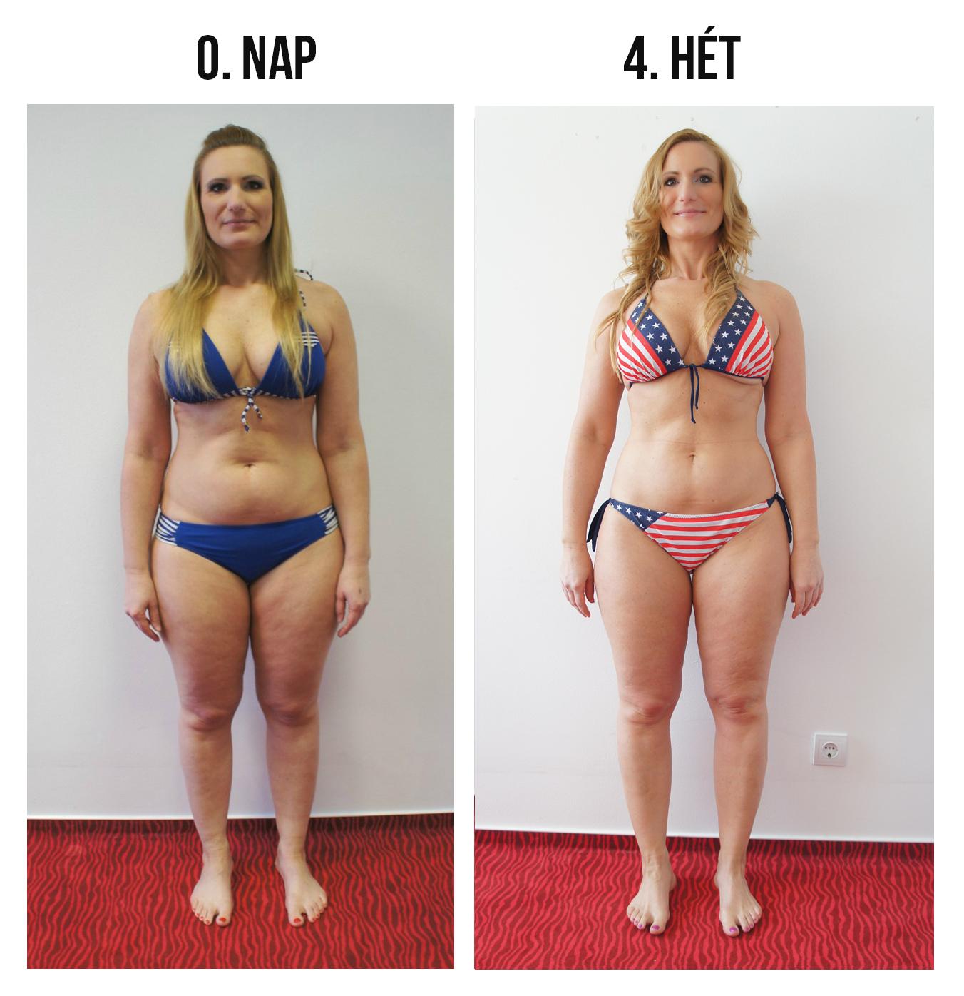 előtt fogyás után bikini