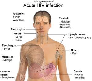 fogyás tünete hiv