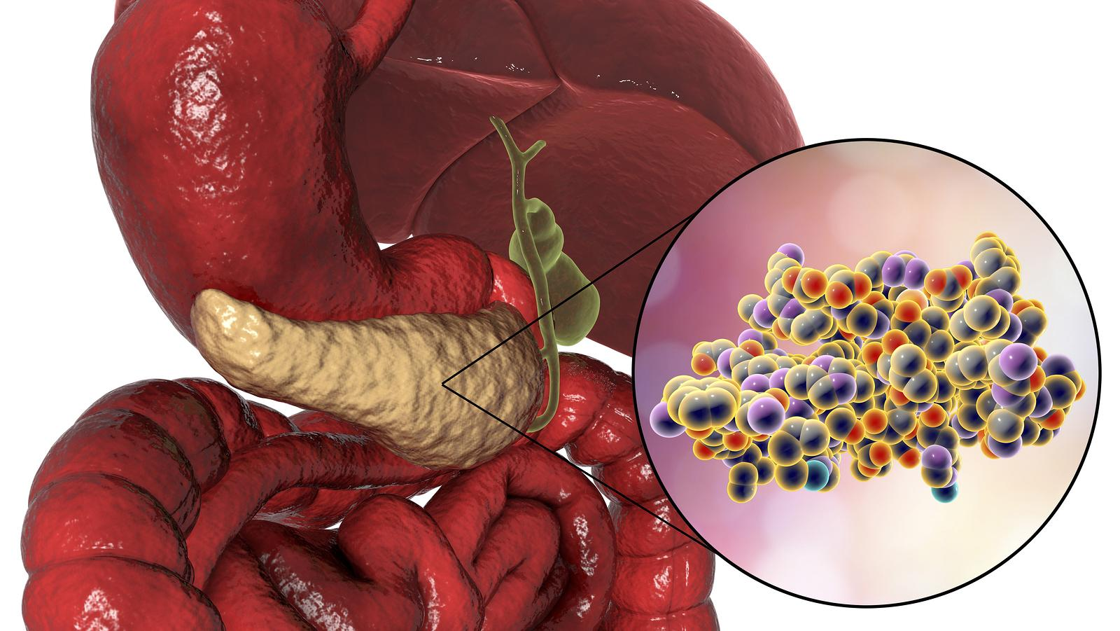 Krónikus hasnyálmirigy-gyulladás tünetei és kezelése - HáziPatika