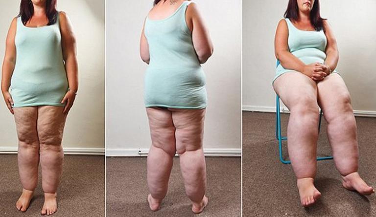 A fogyás segít az isiásznak, az ülőideg hátulról a lábig terjed