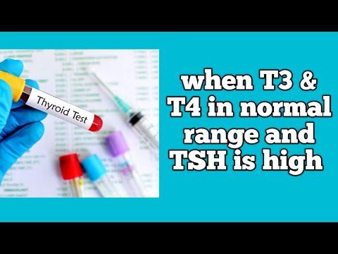 t3 t4 fogyás eljárás a zsír eltávolítására a testből