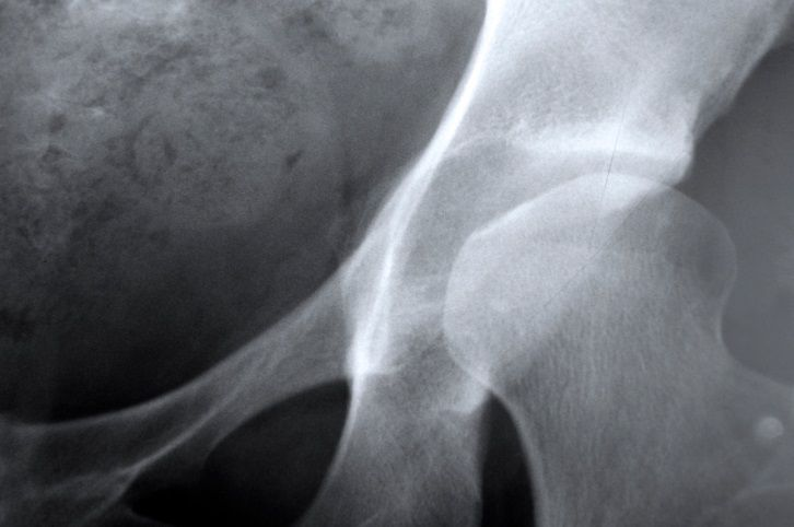 nagyfiú bmx fogyás súlycsökkenés vs hüvelyk vesztett