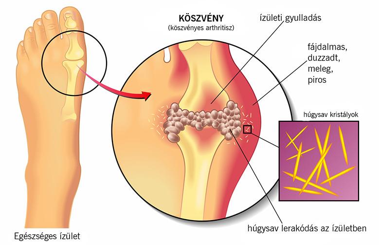 kalcium-piruvát a fogyáshoz