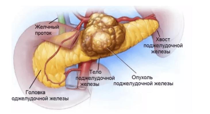 súlycsökkenés az agyalapi mirigy adenoma eltávolítása után