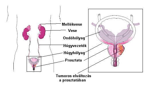 Prosztata gyulladás fogyás Prosztanorm a prosztatagyulladás felülvizsgálatához