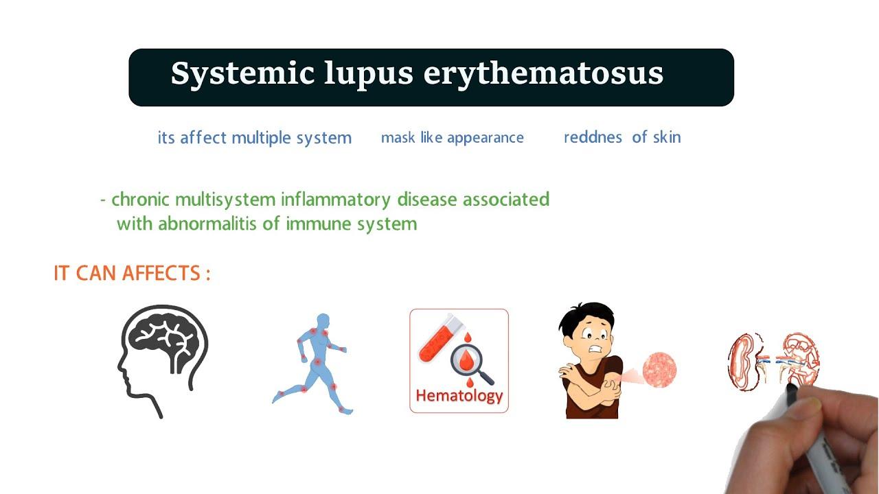 a lupus okoz-e fogyást korona fogyás dr