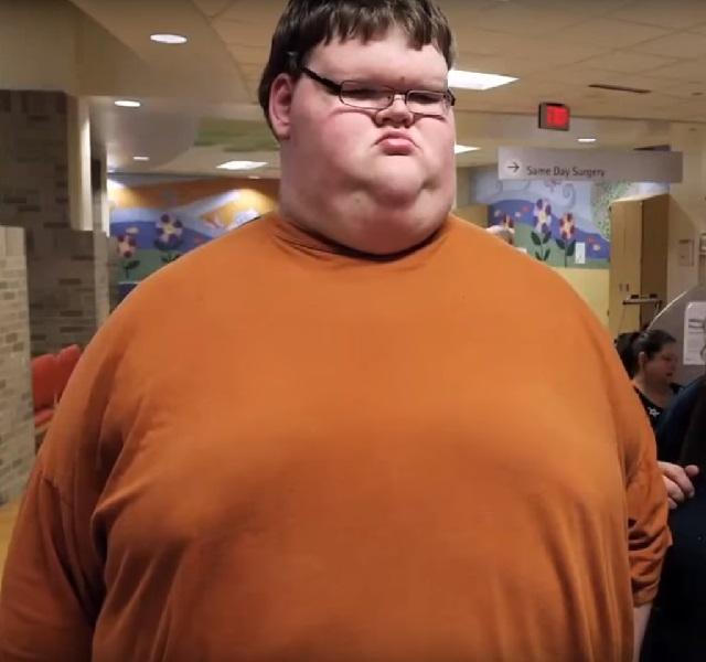 lefogy avatar egy elhízott ember gyorsabban fogy