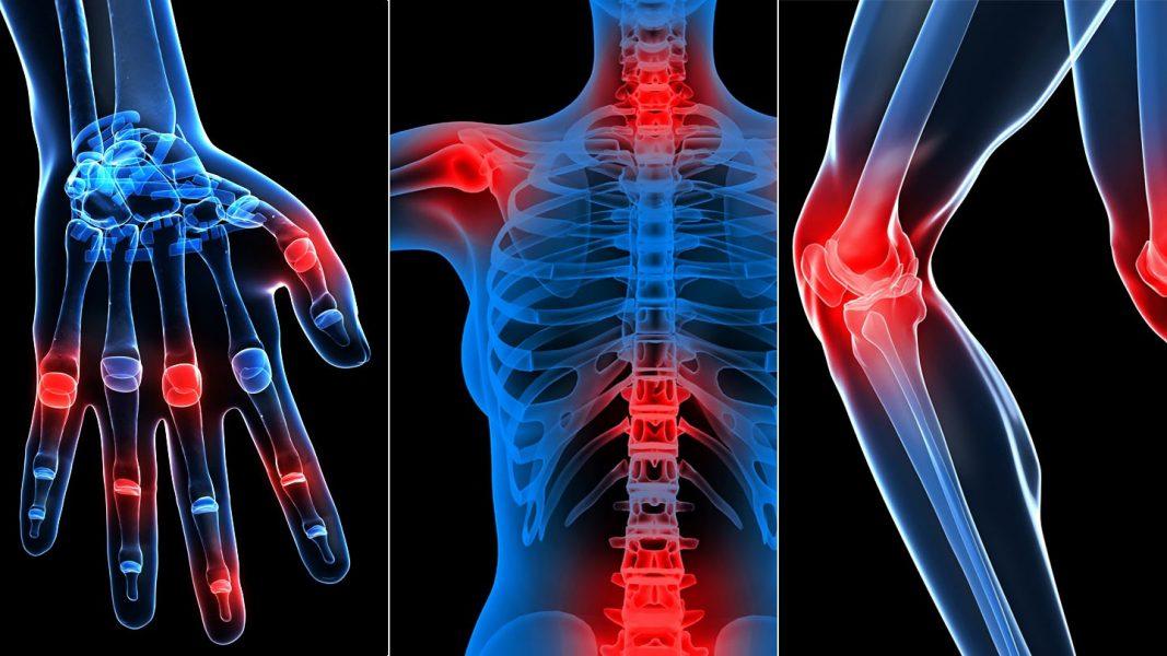 Fogyni ízületi betegség - Mi a reumatoid arthritis?