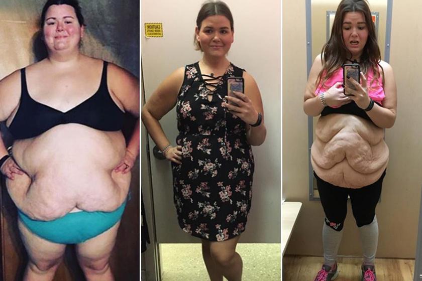 legjobb instagram fogyás történetek egészséges sovány ételek fogyáshoz
