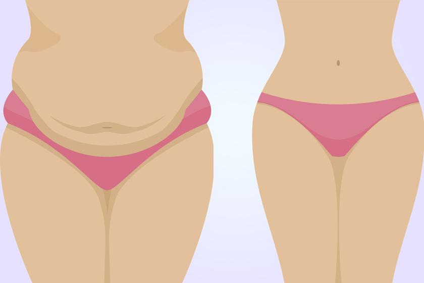 kalcium elveszíti a hasi zsírt él fogyás és fáradtság vélemények