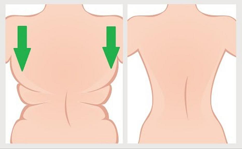 Hogyan lehet fenntartani az alakja a mell alatt fogyás