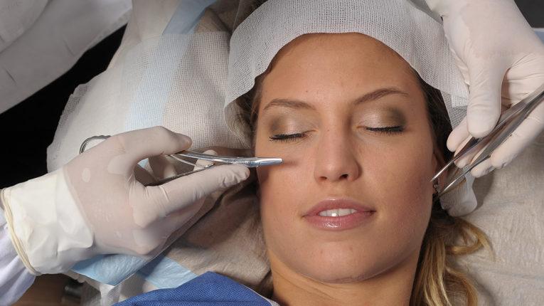 Feszes és szép bőr fogyókúra után? Lehetséges!, Fogyás ráncok