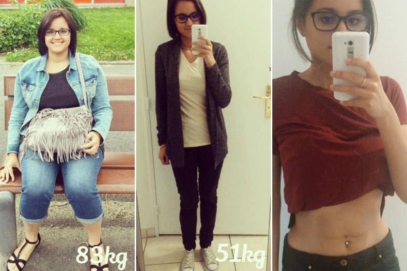 brit zsírégető a crohn-betegség mindig súlycsökkenést okoz-e
