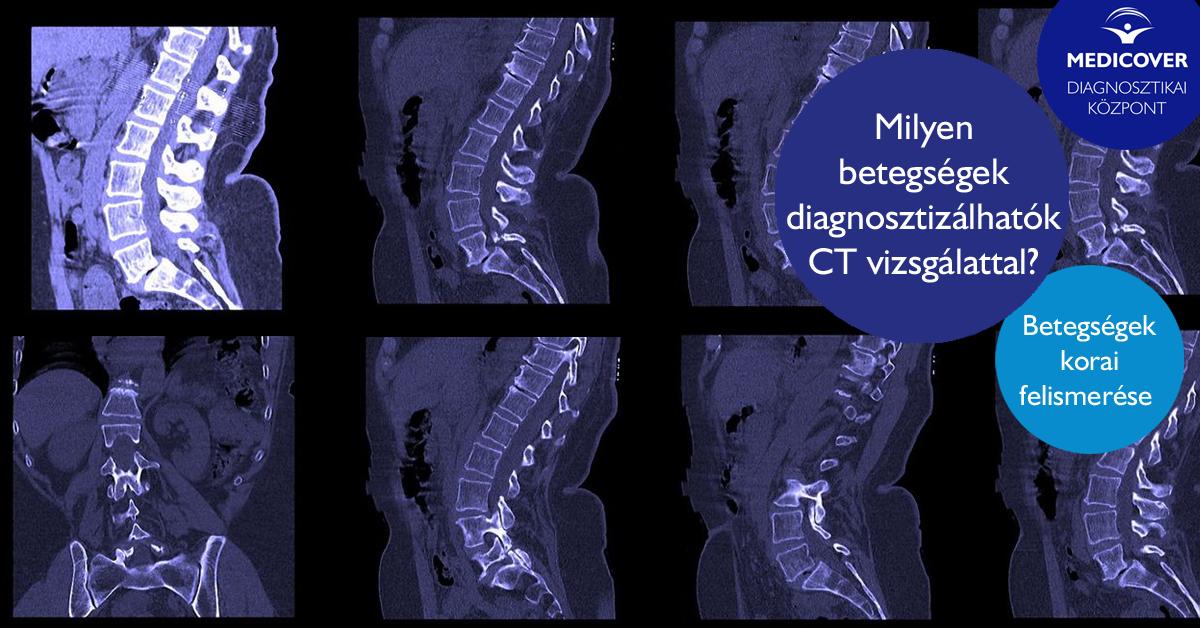 HASI CT-VIZSGáLAT KONTRASZTDAL: CéL, KOCKáZATOK éS EGYEBEK - EGÉSZSÉG -